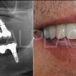 Case Studies Εμφυτεύματα | Dental Implants